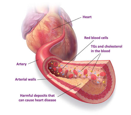 the cardiac health risk from tobacco use essay Other health risks of chewing tobacco include gum disease further research is needed to determine whether or not chewing tobacco use presents a significant risk of heart disease and stroke how smoking affects your looks & life slideshow.