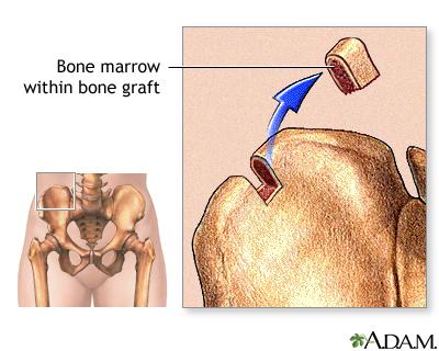 Understanding A Bone Marrow Transplant Health Life Media