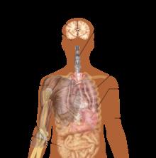 Symptomer vun der Ebola Virus