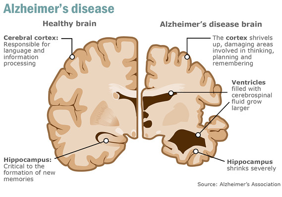 alzheimer's disease Difficulty remembering recent events and retaining new information are typically the first signs of alzheimer's disease alzheimer's causes a slow, gradual decline in memory, thinking.