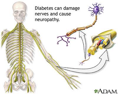 Type 2 diabetes nerve damage reversible tylenol