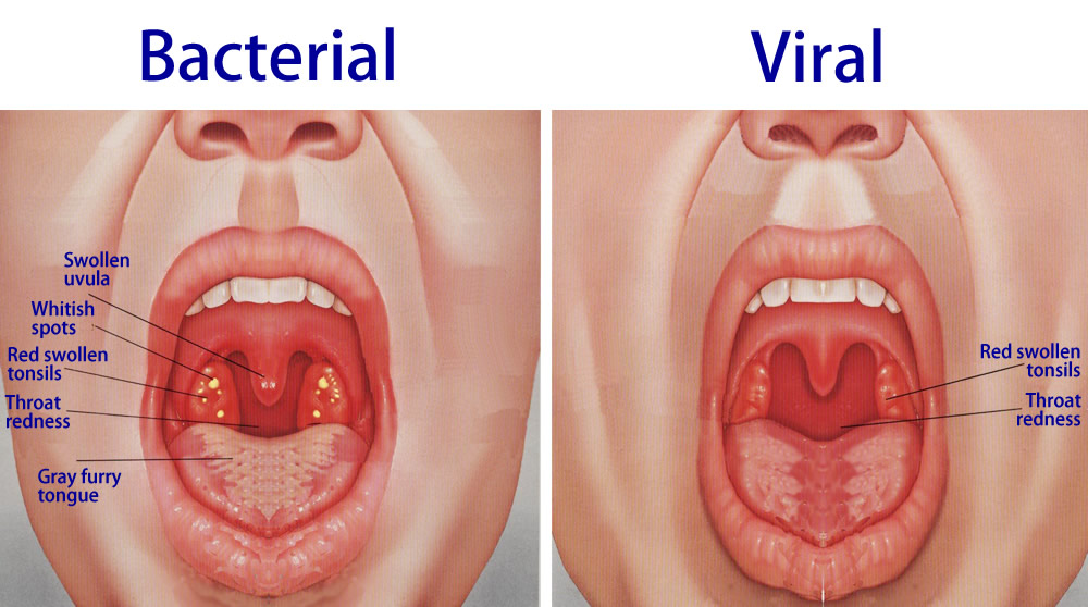 bacterial_and_viral_tonsillitis