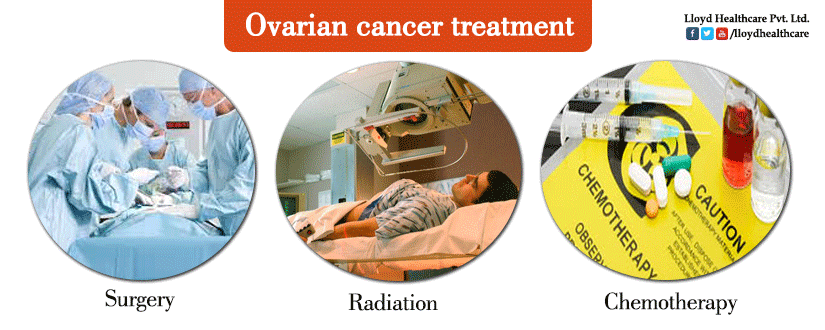 Ovarian-cancer-treatment
