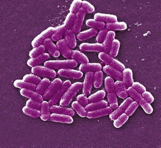 In questo articolo, discutiamo di cosa succede in genere quando c'è un breakout di E. coli e come puoi proteggere te stesso e la tua famiglia. Cos'è E.coli e quanto è diffuso nel cibo?