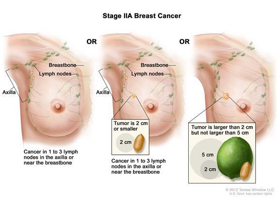 borstkanker fase 3