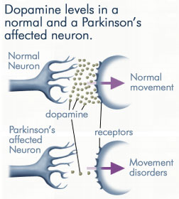 Parkinsons-Disease-and-Glutathione