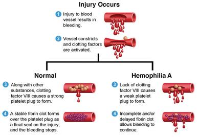 about_hemophilia_a