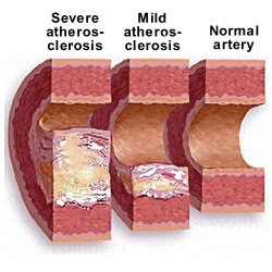 what is atherosclerosis? | health life media, Human Body