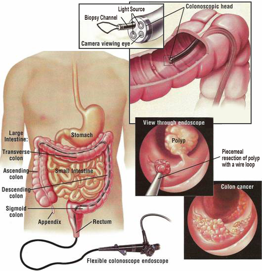 colonoscopy procedure position significantly - photo #28