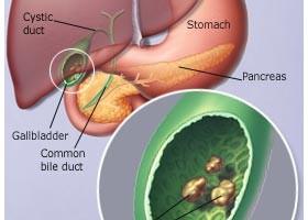 calcoli biliari è un disturbo digestivo causato dal colesterolo, tra le altre cose che si trovano nella bile. Le dimensioni vanno dall'essere più piccole di un granello di sabbia a grandi come palle da golf.