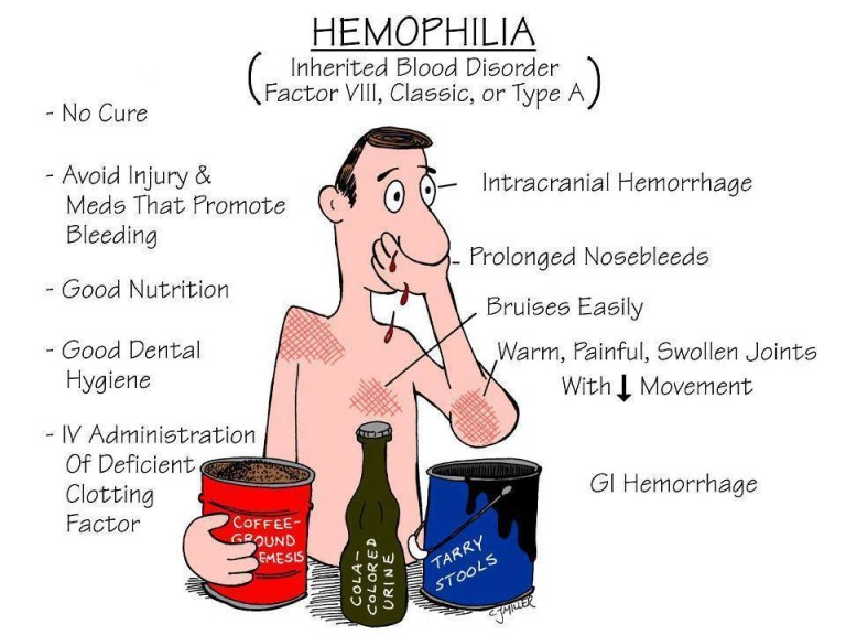 a study on hemophilia a hemorrhagic disorder Congenital hemorrhagic with an x-linked lethal disorder should a and ∼3% of those with hemophilia b 70,71 despite years of study.