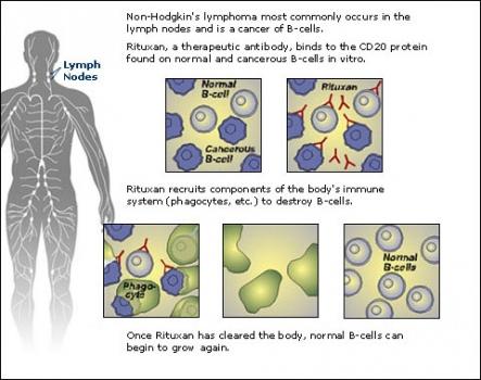 non-hodgkins-lymphoma-cancer.preview
