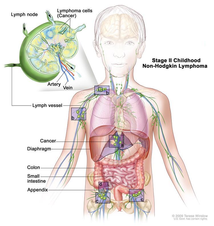 nonhodge-lymphomia