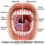 oropharyngeal cancer
