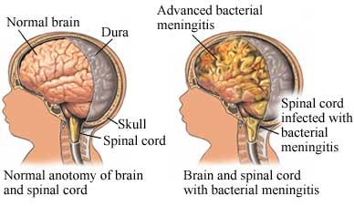what-causes-meningitis
