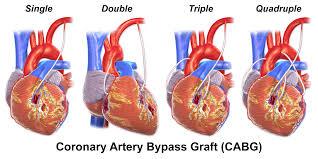 L'intervento di bypass coronarico è una procedura che devia il flusso di sangue attorno a una sezione del cuore parzialmente bloccata o completamente bloccata. Crea un nuovo percorso verso il cuore; le procedure di bypass coronarico migliorano il flusso di sangue al muscolo cardiaco.