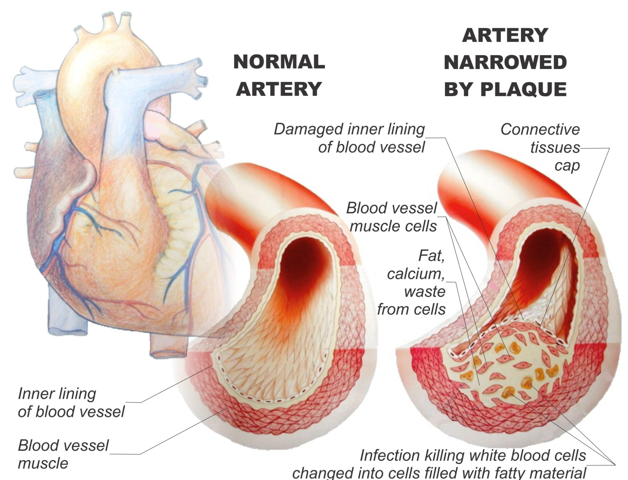 atherosclerosis a vascular disease This whole network of vessels is known as your vascular or circulatory  atherosclerosis and peripheral artery disease  peripheral vascular disease.