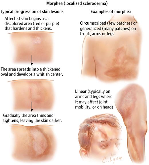 Scleroderma è una malattia cronica della pelle; ciò significa che non scompare nel tempo. Il medico può aiutarti a trattare i sintomi in modo da poterti sentire meglio.