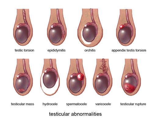 Pain in testicle after masturbation