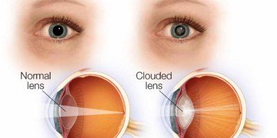 La cataratta è un annebbiamento della lente naturale dell'occhio. La lente si trova dietro l'iride e la pupilla,