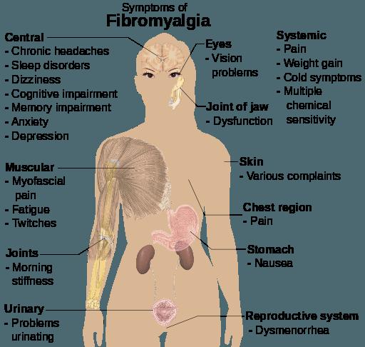 Types of Myositis - Myositis Support and Understanding