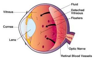 I float dell'occhio sono piccoli punti in movimento che appaiono nel campo visivo di una persona. Possono essere particolarmente evidenti quando guardi qualcosa di luminoso, ad esempio lo schermo bianco o un cielo soleggiato.