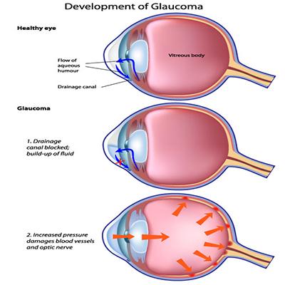 glaucoma-development-