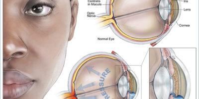 la laucoma è una condizione che causa il deterioramento del nervo ottico dell'occhio e tende a peggiorare nel tempo. Il glaucoma è correlato all'accumulo di pressione all'interno dell'occhio. Il glaucoma tende ad essere ereditato e potrebbe non presentarsi più tardi nella vita.