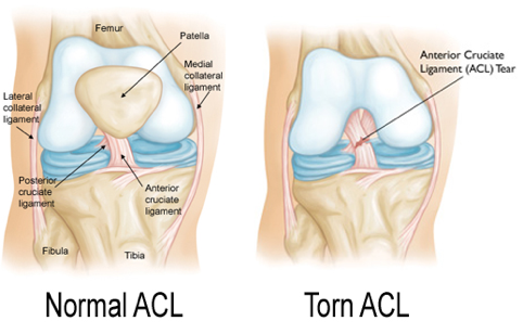 the causes effects and management of anterior crucial ligament acl injuries Anterior cruciate ligament injury is when have a measurable effect on reducing injuries to the acl can sometimes cause damage to the cartilage.