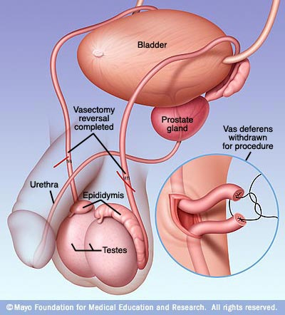 vasectomyreversed
