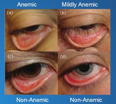 Anemia 3
