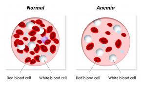 L'anemia è una condizione che si verifica quando il sangue non ha abbastanza globuli sani o emoglobina. L'emoglobina è il componente centrale dei globuli rossi e lega l'ossigeno.