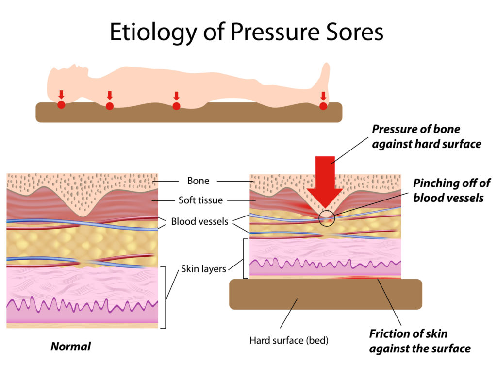 Etiology of pressure sores, eps8