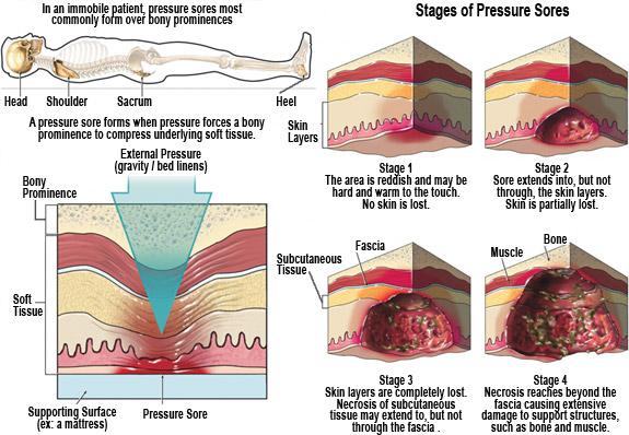 Pressure Ulcers 3
