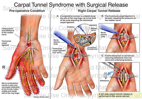 This full color stock medical exhibit depicts carpal tunnel syndrome and steps from the subsequent surgical repair. A series of four images illustrate the pre-operative condition, the longitudinal incision to expose the injury, the release of the carpal ligament and the removal of further adhesions compressing the median nerve.