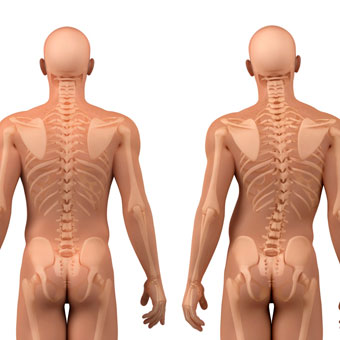Image result for What can one do to straighten mild scoliosis?