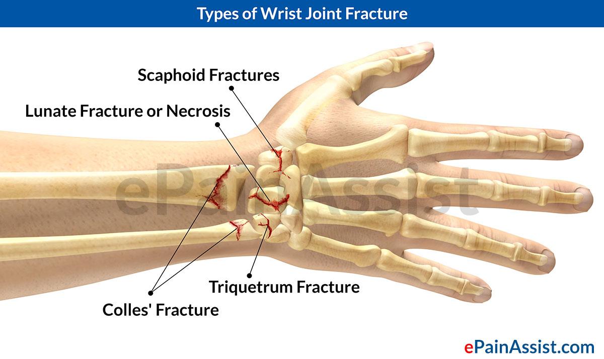 Handverletzungen: Handgelenkfraktur | Health Life Media