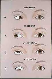 les types de amblyopie