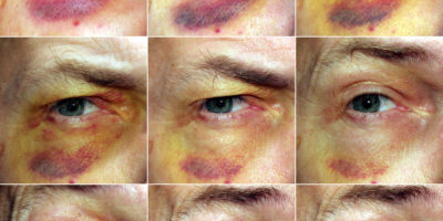 Un occhio nero, talvolta chiamato lustro o ematoma periorbitale, si verifica quando i liquidi si accumulano nei tessuti che circondano l'occhio dopo una ferita vicino all'occhio.