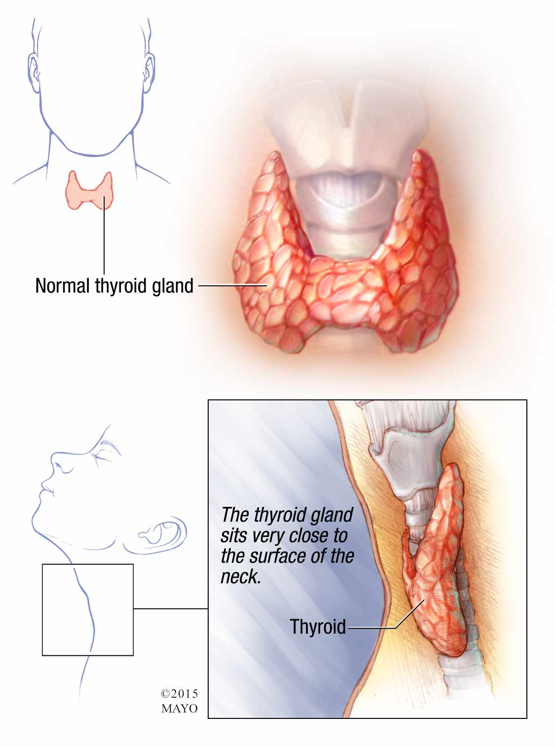 an analysis of under active thyroid