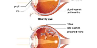 Il distacco della retina è un disturbo dell'occhio in cui la retina si stacca dall'epitelio pigmentato della retina. Distacchi retinici possono essere prodotti da perdite di liquido dietro la retina attraverso le lacrime, i liquidi che secernono dalla retina.