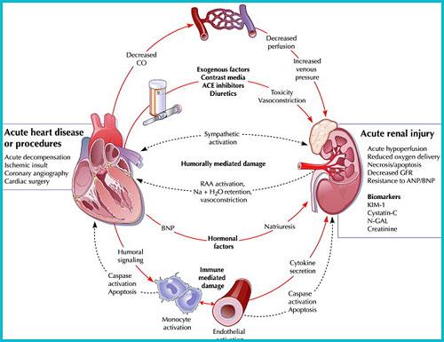 what is acute kidney failure renal failure health life