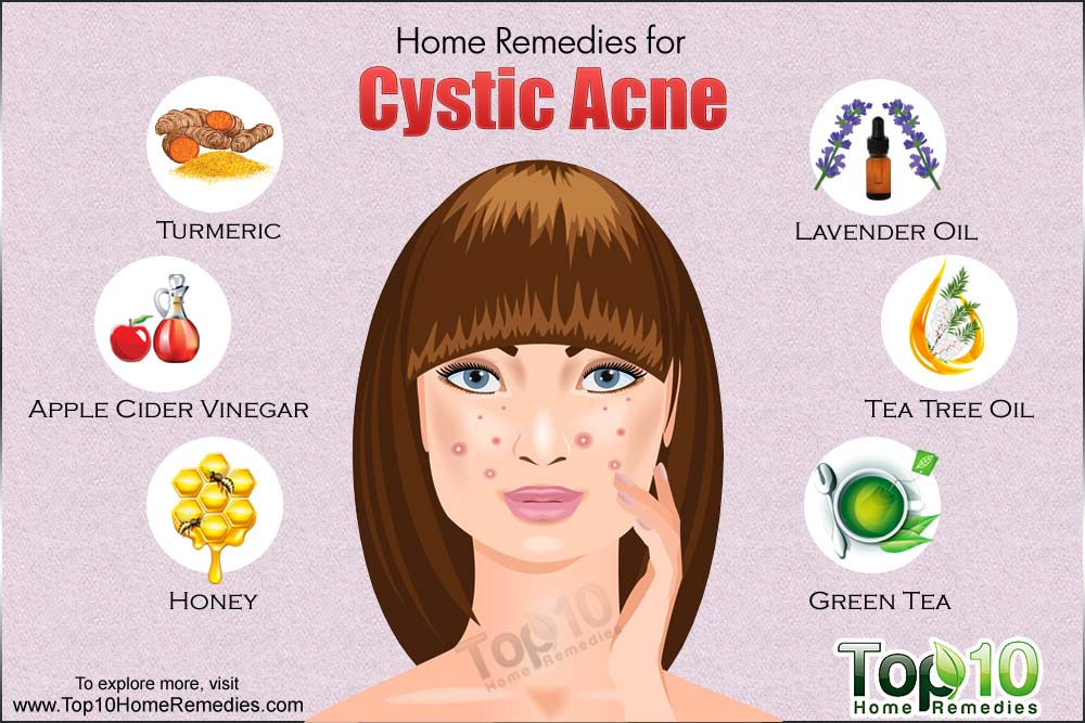 Natural Ways To Clear Acne Fast