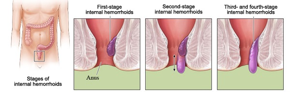 hemorrhoid bleeding