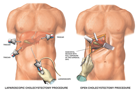 laparoscopic-gallbladder-surgery
