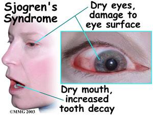 sjogren_syndrome