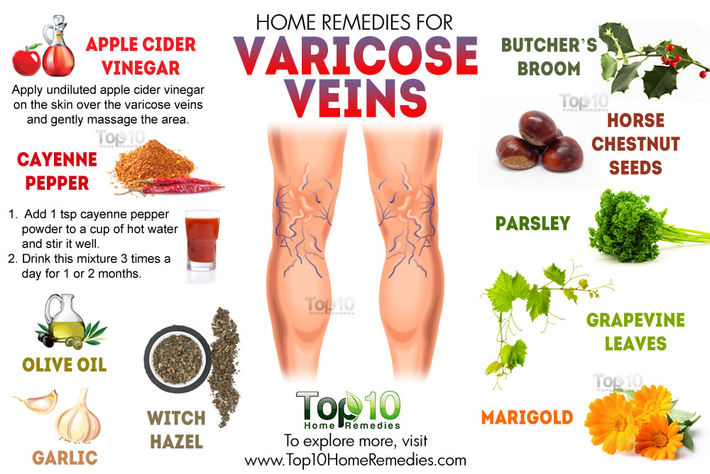 Natural Wys To Get Rid Of Vericose Veins