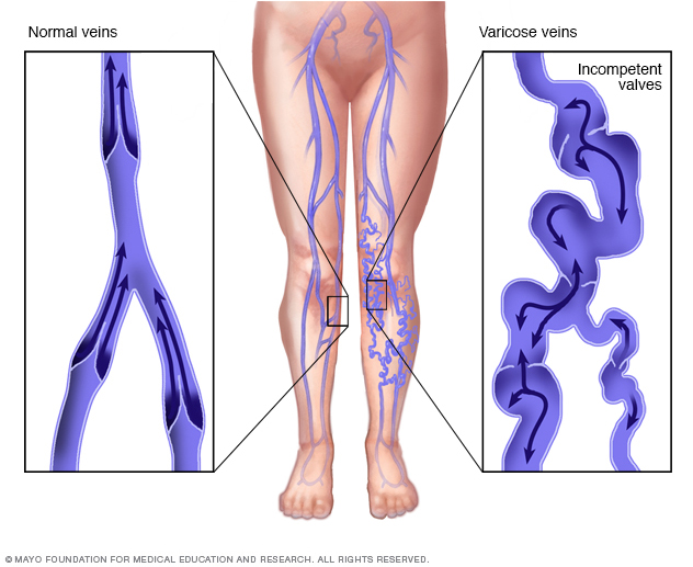 What Are Varicose Veins | Health Life Media