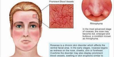 La rosacea è una condizione della pelle prevalente che provoca arrossamento del viso e spesso produrrà piccole protuberanze piene di pus rosso. Anche se la rosacea può verificarsi in chiunque, spesso colpisce le donne, che sono al centro e hanno un tono di pelle chiara.