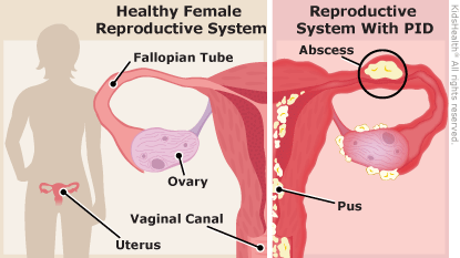 Can clomid damage ovaries